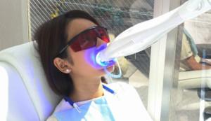 歯のセルフホワイトニング トリートメントの様子